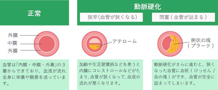 人工透析 動脈硬化 大阪